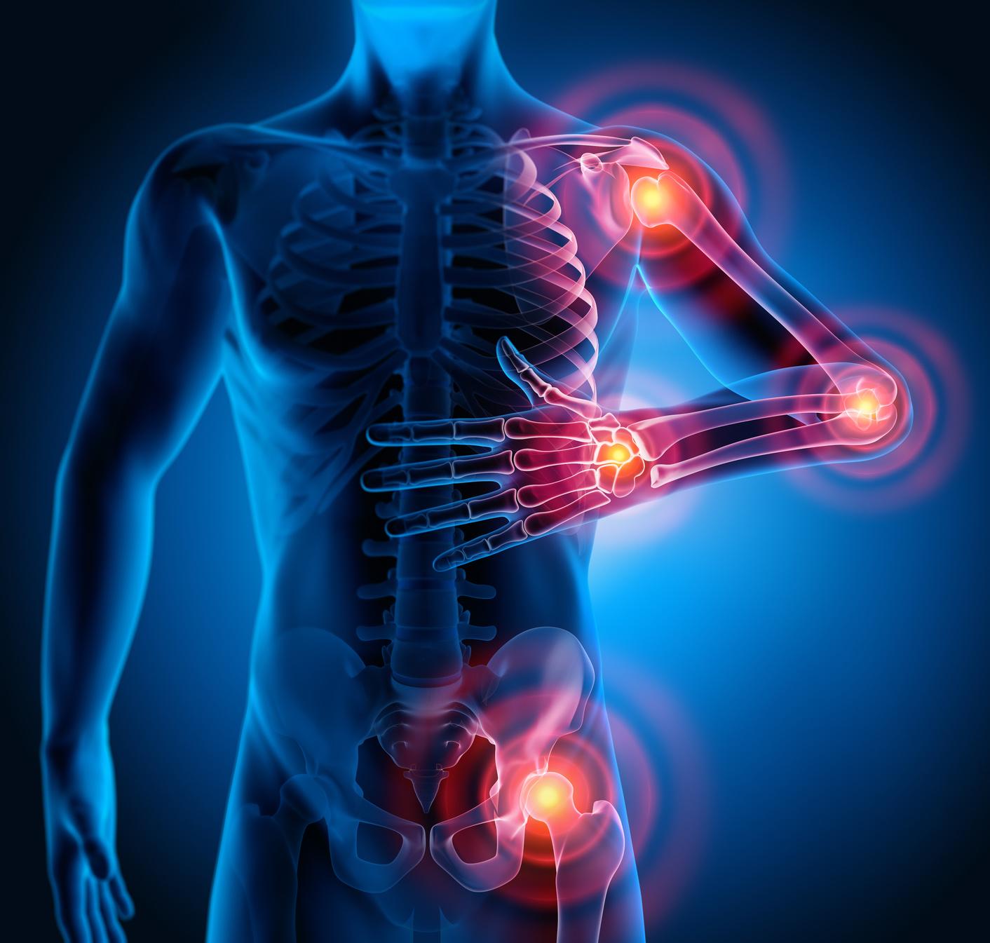 Motivo per dolori articolari nel corpo, introduzione